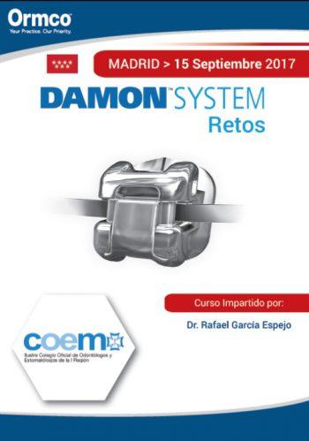 Damon System: Retos -MADRID-