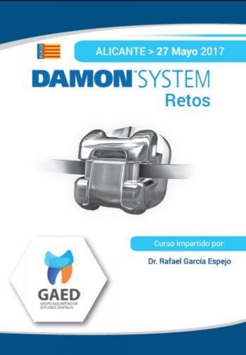 Curso Damon System: retos -Alicante-