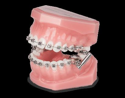Dispositivos Intra/Extra Orales